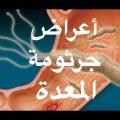 وداعا لجرثومة المعدة بدون رجعة باذن الله التغذية القوية للقضاء على جرثومة المعدة