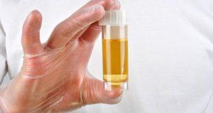 علاج املاح الكلى والالتهابات
